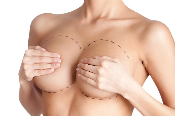 Read more about the article O que é mastopexia: 7 informações pouco conhecidas